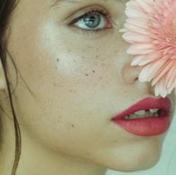Les nouveaux traitements de l'acné