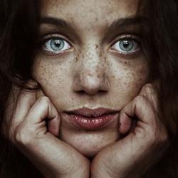 Les taches disgracieuses après un acte esthétique : hyperpigmentation post inflammatoire